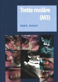 Tretie moláre (M3)