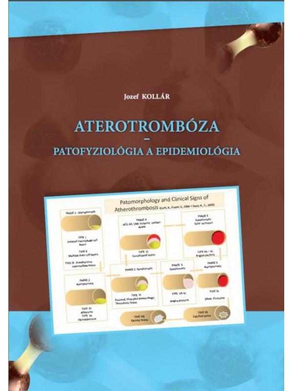 Aterotrombóza - patofyziológia a epidemiológia